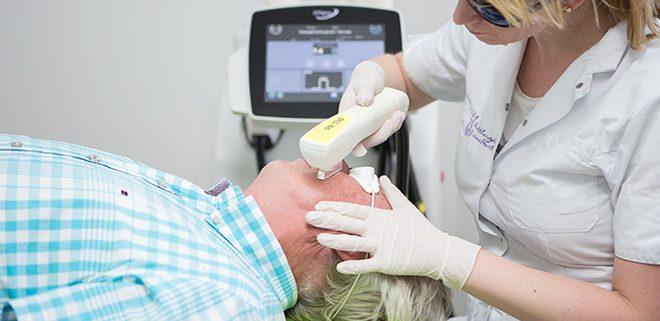 Laserbehandeling bij couperose en vaatafwijkingen