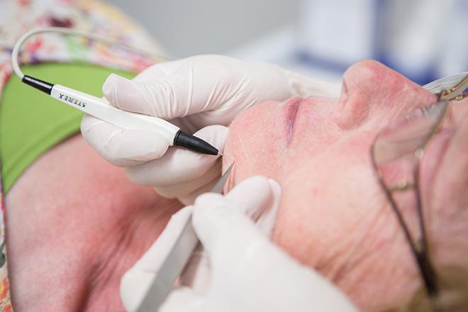 elektrisch ontharen gezicht geschikt voor blonde en dunne haartjes bij huidtherapie groene hart