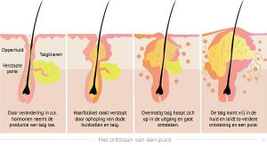Het ontstaan van een puist. Huidtherapie Groene Hart kan deze goed behandelen met acn therapie en producten