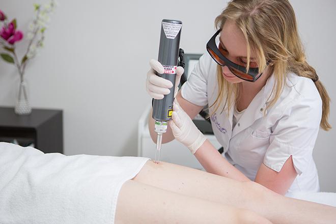 laseren pigmnetafwijkingen bij huidtherapie groene hart