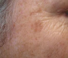 lentigo solaris gezicht bij huidtherapie groene hart behandelen wij dit met IPL, laser of stikstof