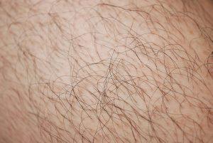 haren op het lichaam te behandelen door lasertherapie