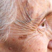 ouderdomspigment kan op diverse manieren worden behandeld bij huidtherapie groene hart