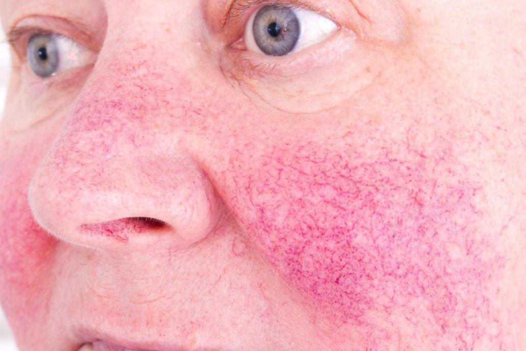couperose wangen te behandelen bij Huidtherapie Groene Hart