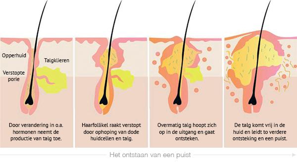 acne-puistjes-ontstaan